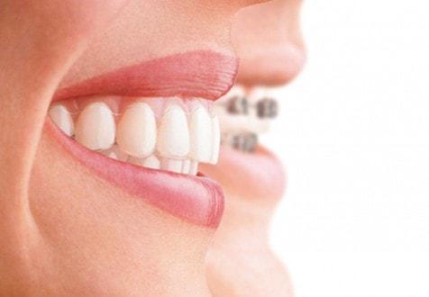 Ortodonzia
